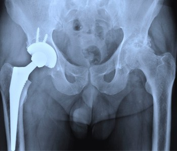 A Go To Person During Joint Replacement Surgery Saint