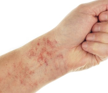 Treatment For Rashes Saint Francis Healthcare System