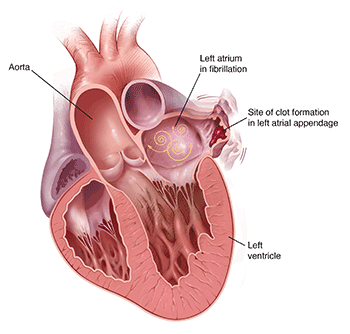 More than 90% of stroke-causing clots that come from the heart are formed in the LAA.